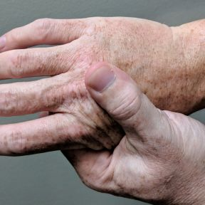 Ian Furst:  Person massaging their hand due to pain