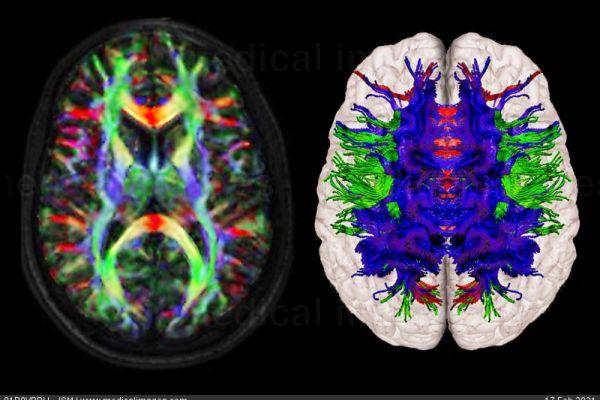 DTI of normal brain