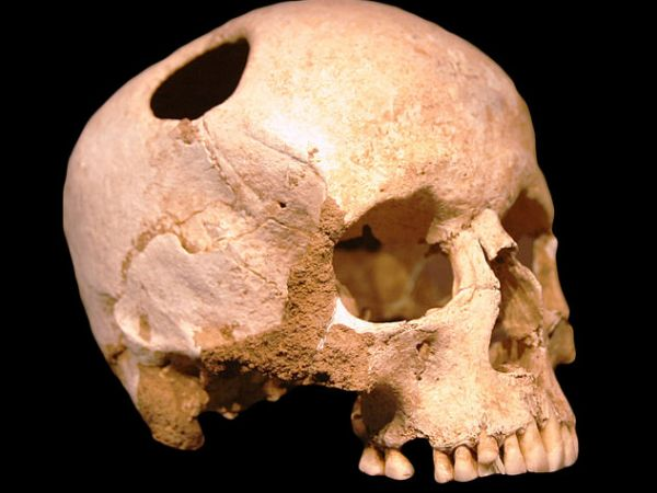 "Trepanated skull of a woman, photo by ""Rama"""